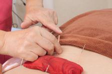 不妊鍼灸治療
