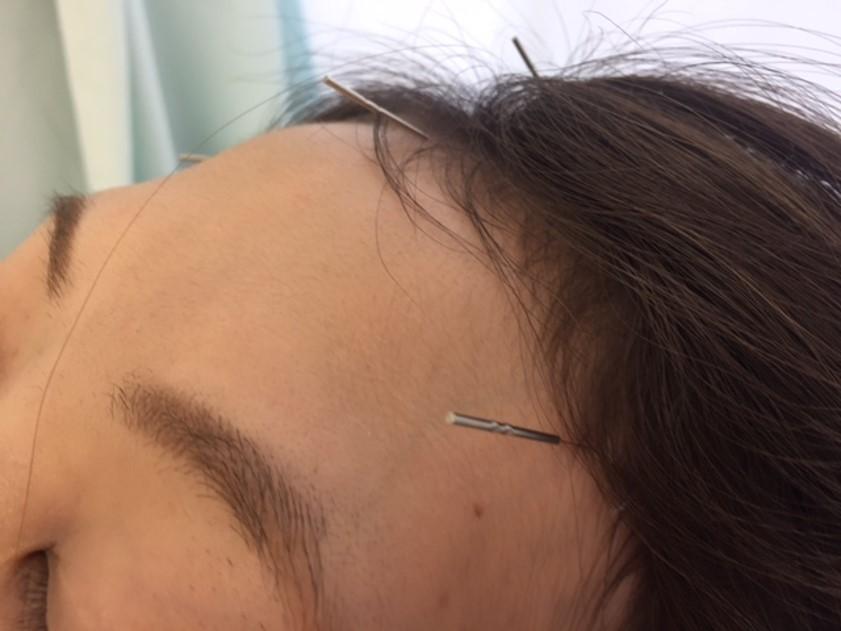 頭皮透刺鍼法(頭の卵巣特効穴鍼法)