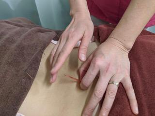 鍼灸施術シーン